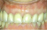 dentists-dental-crowns-and-bridges5
