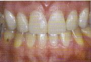 dentists-dental-teeth-whitening-bleaching